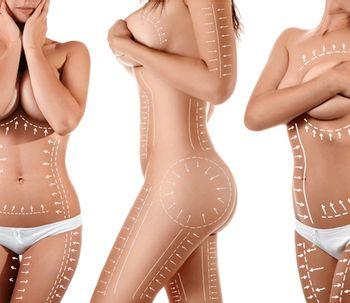 Recomendaciones para lograr los mejores resultados con tu cirugía