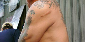 Micropigmentación; la técnica que oculta cicatrices