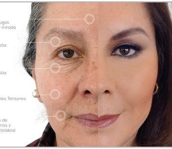 Rejuvenecimento Facial con Técnicas Ambulatorias