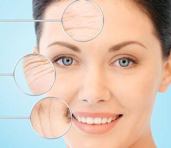 Resurfacing; El rejuvenecimiento facial con láser CO2 fraccionado
