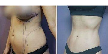 Lipectomía y/o abdominoplastia