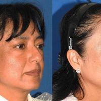 """""""Una malarplastia se recomienda a pacientes con poco desarrollo del pómulo y con apariencia de """"cara plana""""."""