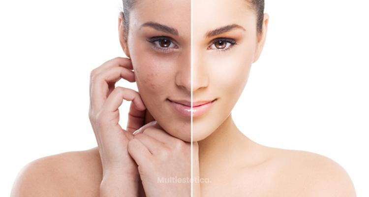 Clear Light una rápida respuesta del tratamiento del acné