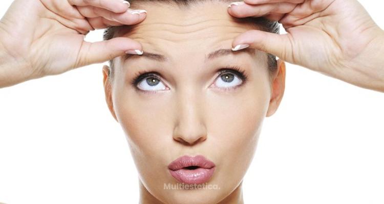 Botox: principales dudas y preguntas frecuentes