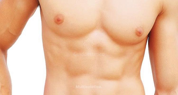 Ginecomastia, Reducción Busto Masculino