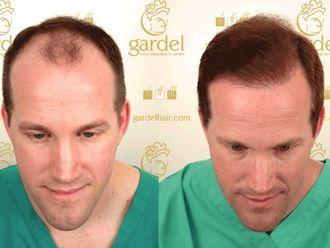 Trasplante de cabello-568458
