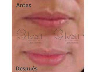 Aumento de labios - 641998