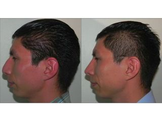 Cirugía Estética de Confianza. Dr. Alberto Rosales Ayala