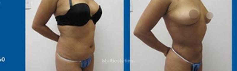 Antes y despues de liposuccion