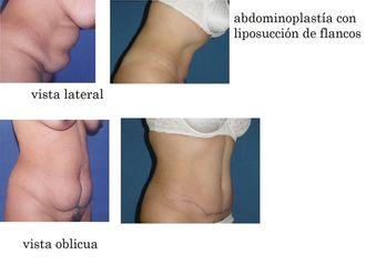 Abdominoplastia-619850