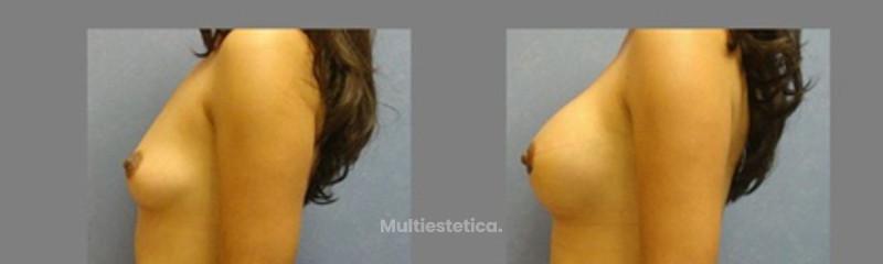 Aumento mama