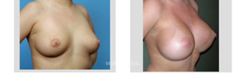 Silicone gel breast augmentation