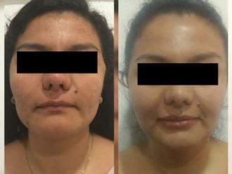 Aumento de labios-629245