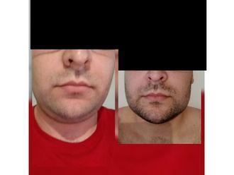 Cirugía de papada - 663566
