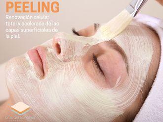 Peeling-647093