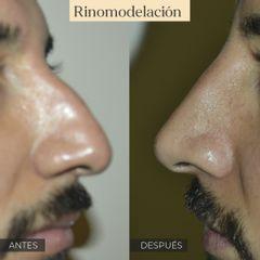Rinomodelación - antes y después