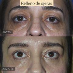 Relleno de ojeras - antes y después