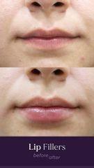 Aumento de labios - antes y después