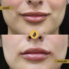Relleno labios - antes y después