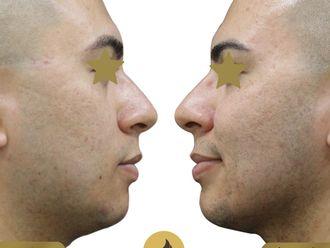 Cirugía de papada-689772