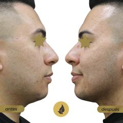 Liposucción de papasa - antes y después