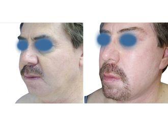 Rejuvenecimiento facial - 641845