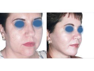 Rejuvenecimiento facial - 641846