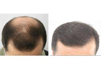 Trasplante de cabello-492611