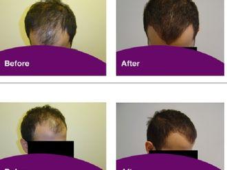 Trasplante de cabello-570131