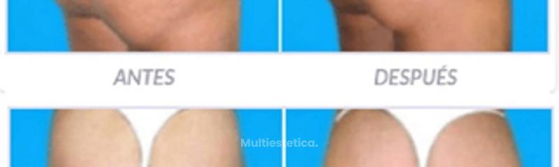 Antes y despues de gluteoplastia