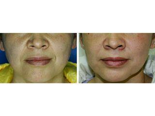 Aumento de labios y surco nasogeniano