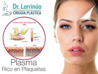Plasma Rico en Plaquetas (PRP)