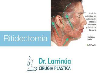 Ritidectomía