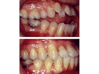 Cirugía maxilofacial-499564
