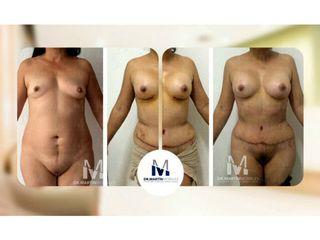 Aumento Mamario y Abdominoplastia