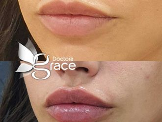 Aumento de labios-737116