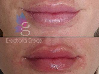 Aumento de labios-737127