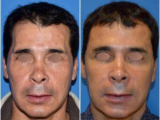 Tratamientos faciales-592143