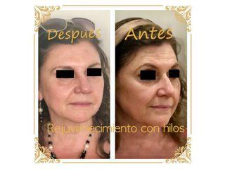 Rejuvenecimiento facial con Hilos. Colocación de hilos tensores reabsorbibles