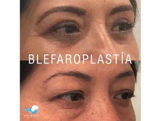 Blefaroplastia-645424