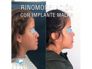 Rinomodelación con implante malar