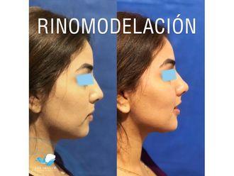 Rinomodelación-645433
