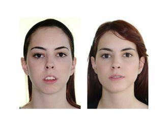 Cirugía maxilofacial-437609