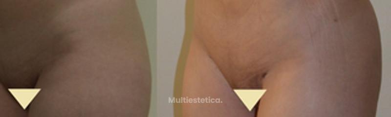 Antes y despues de aumento de gluteos