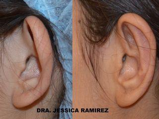Antes y despues de otoplastia