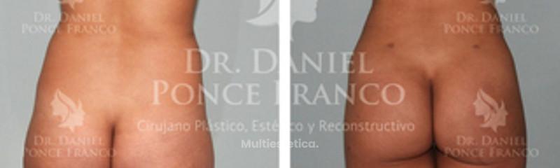 Liposucción de espalda y
