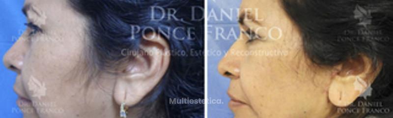 Lifting facial y de cuello