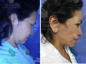 Cirugía de papada-627263