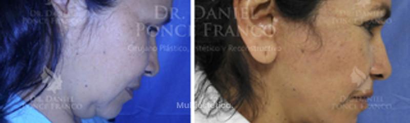Cervicoplastía y lifting facial