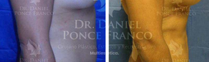 Liposucción e implantes de mama
